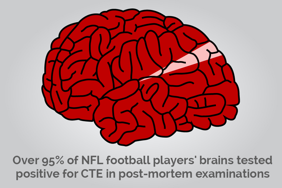 NFL-Brain-Injury